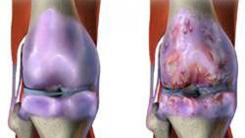 Bioscience: Osteoartrite, ?a San Marino il trattamento per le degenerazioni delle cartilagini