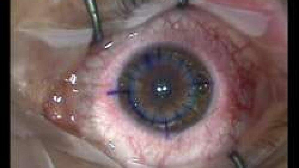 Primo trapianto di cornea