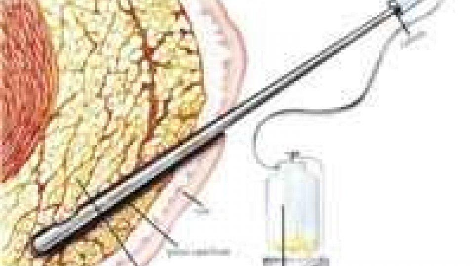 Estetica: la liposuzione l'intervento più eseguito nel 2012